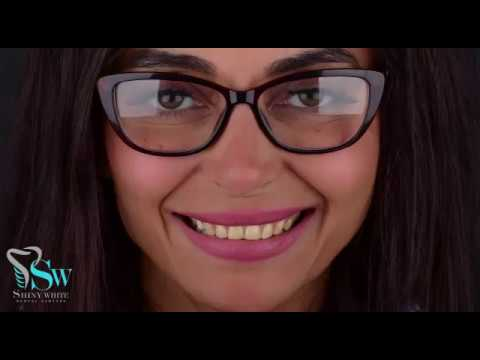 تعرف علي سر الابتسامة المشرقه  للفنانة  رانيا شاهين مع مراكز شايني وايت