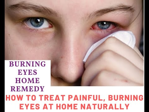 How To Treat Painful Burning Eyes At Home Naturally Burning