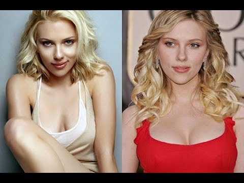 Thumbnail: Celebrities Plastic Surgery transformations 2015 - 40 Stars Before After Plastic Surgery