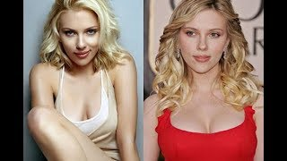 Repeat youtube video Celebrities Plastic Surgery transformations 2015 - 40 Stars Before After Plastic Surgery