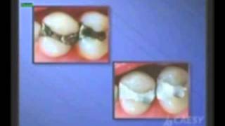 Dentist Whittier CA, What is a White Dental Filling? Dr. Kamran Sahabi Thumbnail
