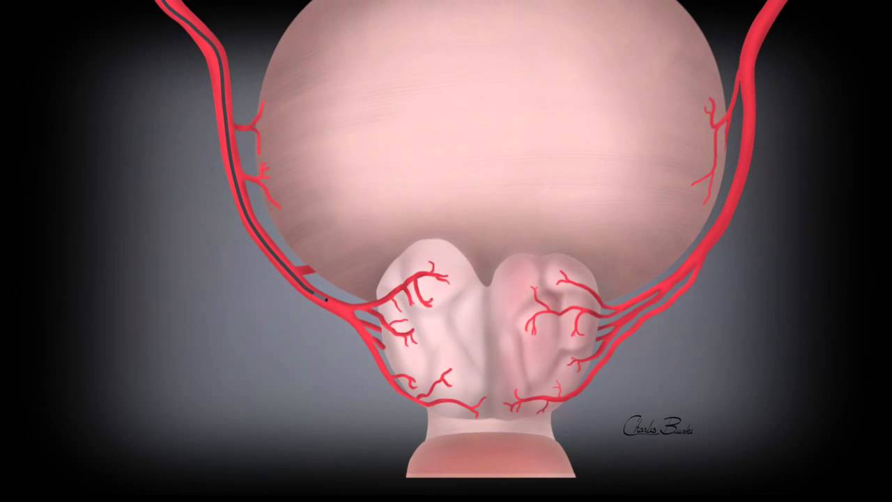 Prostatic Artery Embolization at UNC Heart & Vascular continues to ...