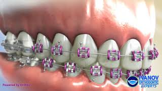 Getting Braces: Types, Parts