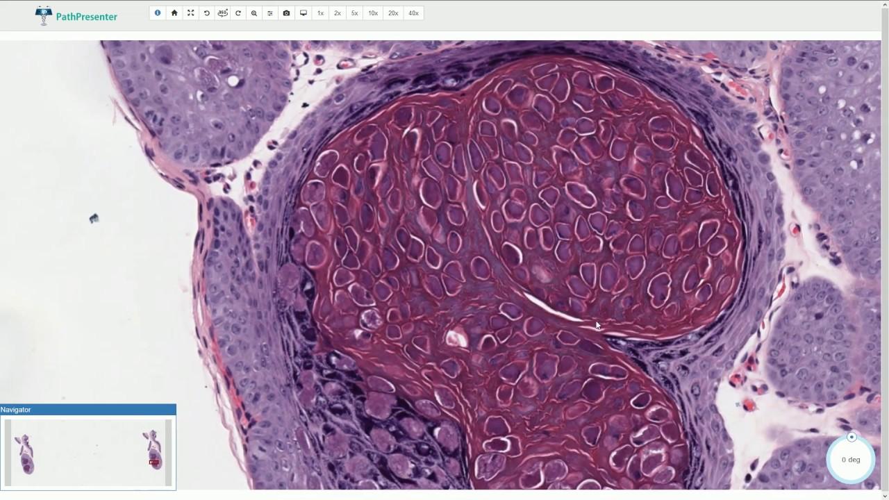 Papilloma az arc kezelésén - Egyidejűleg a genitális szemölcsök