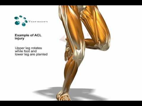 ACL Tear (Sports Injury)