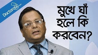 Mouth ulcers home remedy - Mouth ulcers treatments - What causes mouth ulcers - Health Tips Bangla