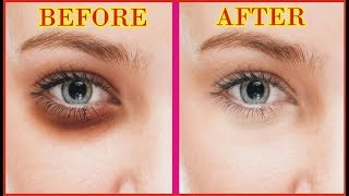 How To Get Rid Of Dark Circles At Home | Skin Care Tips For Girls | Naz Skincare