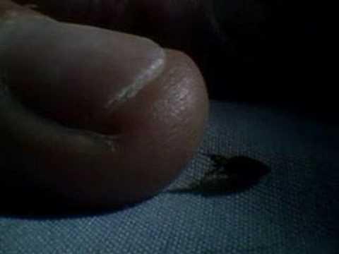 Bed Bugs動画