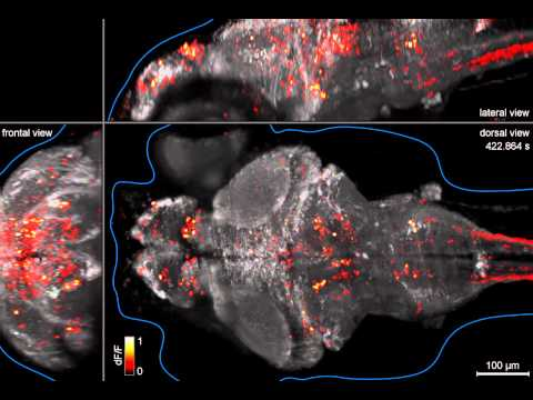 Whole-brain Imaging Of Neuronal Activity In A Larval Zebrafish