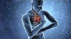 Herzinfarkt: Wie erkennen, wie reagieren?