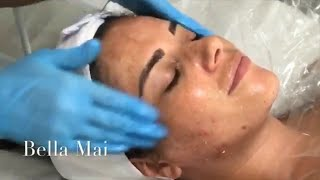 Dermaplaning, Enzyme, Face Mask & LED Light Therapy ~ ( Complete Treatment 2)