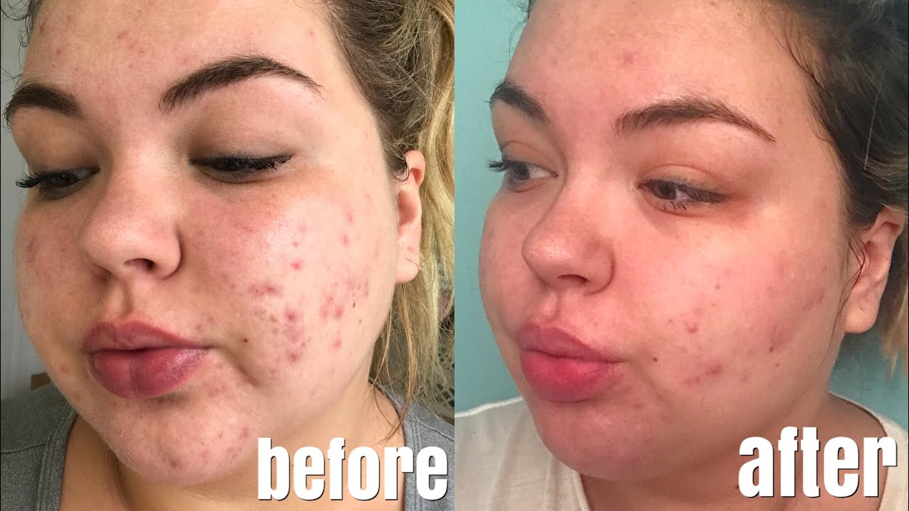 One Month Accutane Update | Results, Side Effects & Photos ...