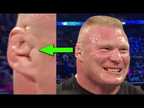 What's Wrong With Brock Lesnar's Ear? 10 Weirdest Things On WWE Superstars