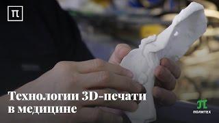 видео 3D печать в медицине | Медицинский портал EUROLAB