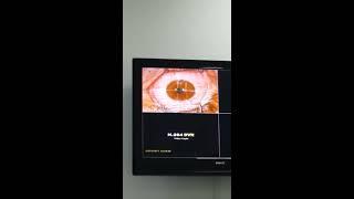 Bıçaksız göz lazer ameliyatı  (no touch laser )