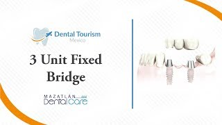 3 Unit Bridge Mazatlan - Dental Tourism Mexico