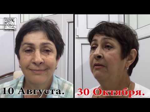 880. О лечении Невропатии Тройничного нерва методом RANC и 30-дневном курсе.