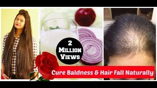Home Remedy For Baldness & Hair Regrowth|ONION JUICE & Black Pepper Corn for Hair|Sushmita's Diaries