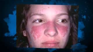 Lupus Eritematoso tratamiento