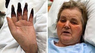 2 Tage nach der Reinigung bemerkte die Frau, dass ihre Finger schwarz wurden