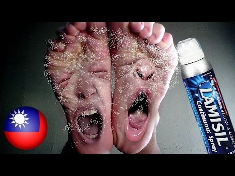 Athlete's foot itches like hell! Woman steals foot spray from pharmacy