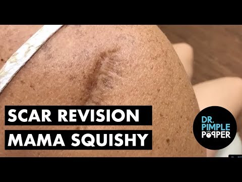 Scar Revision with Momma Squishy