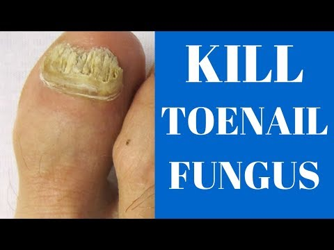how-to-get-rid-of-toenail-fungus-fast!!-(here's-how)