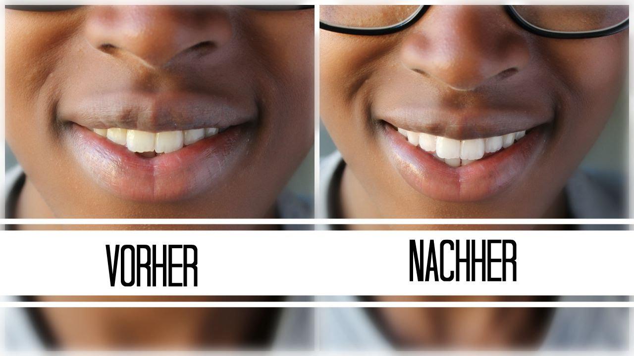 Zähne Nur Mit Zahnpasta Aufhellen Youtube