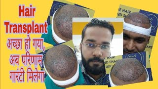 Patient Hair Transplant Review - 10 Rs Per Graft Cheapest Clinic in India
