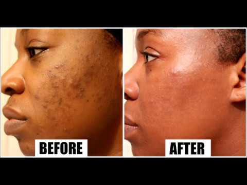 Get rid of ACNE SCARS Fast using safe and NATURAL Products | Skin Care Routine