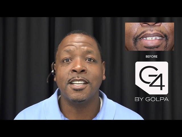 G4 By Golpa - Dallas - Patient: Ben M