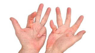 dupuytren s contracture and carpal tunnel syndrome