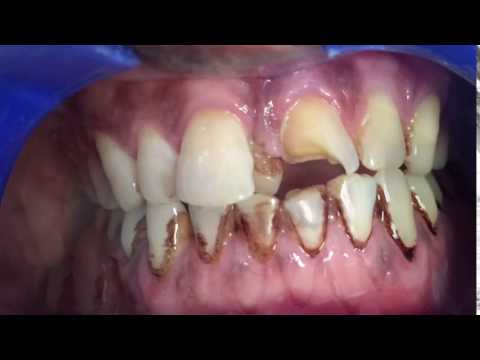 Tobacco/Smoking  stains on teeth