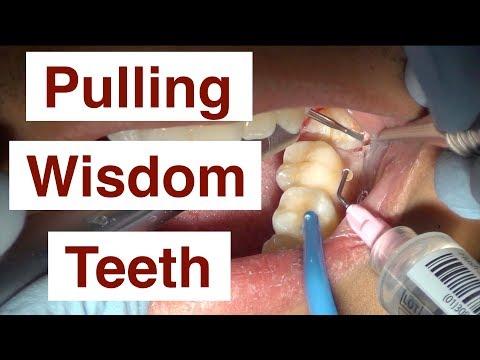 Pulling Wisdom Teeth