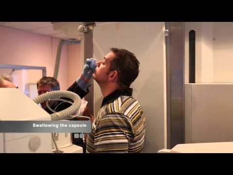 Obalon Balloon Pill –  Rafal Nuckawski Testimonial