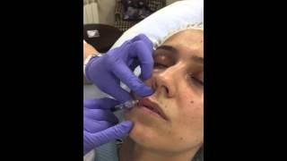 Инъекционная косметология. Работа врача.(, 2016-02-26T15:17:08.000Z)