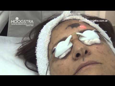 Peeling Facial de Carbonilla - Furor en Europa! (14023)