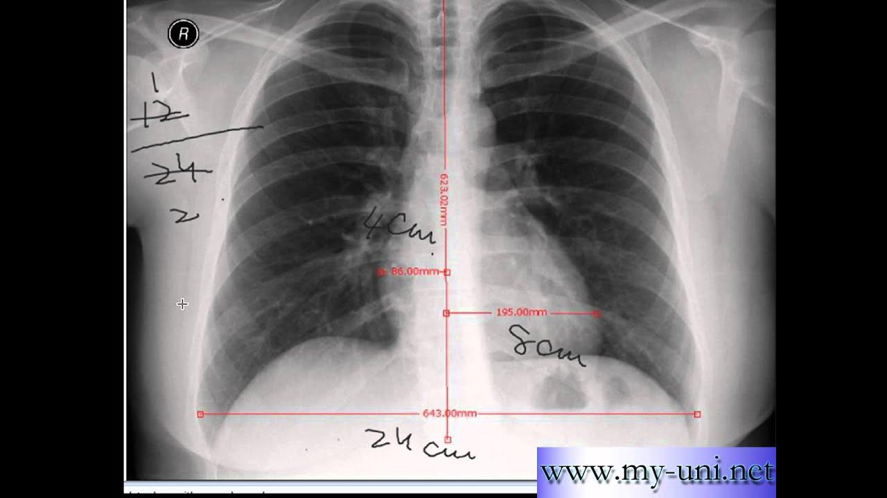 Chest x-ray -Cardiothoracic Ratio -CARDIAC SIZE - Cardiomegaly - YouTube