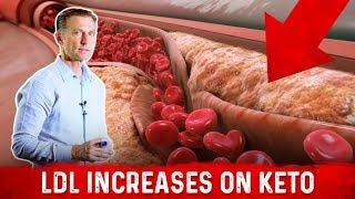 Cardiologist (Dr. Nadir Ali) Explains LDL (Bad Cholesterol) Spike with Keto