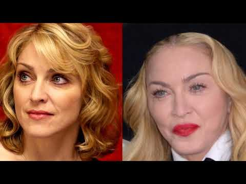 Madonna Plastic Surgery Rumors – Did Madonna Undergo Cosmetic Surgery?