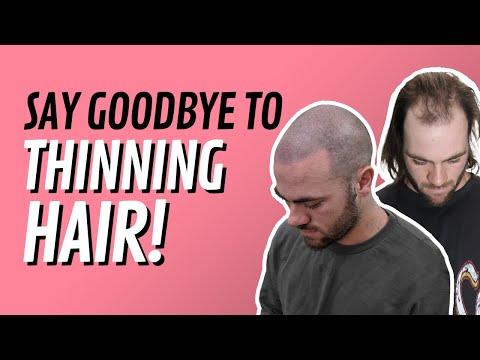 Nathan's Hair Loss Story- Scalp Micropigmentation Australia