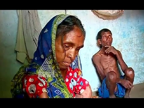 Fluoride Contamination in Groundwater Garhwa Palamu districts | Akalangalile India 3 Aug 2016