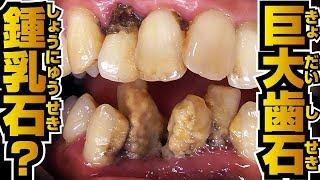 [歯石取り]鍾乳石のようになってしまった歯石を除去します。[Tartar removal]歯石Vol.7(去除鐘乳石一樣的牙石)