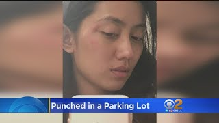 Punched On Tape: Asian Model Claims Racism Provoked Attack