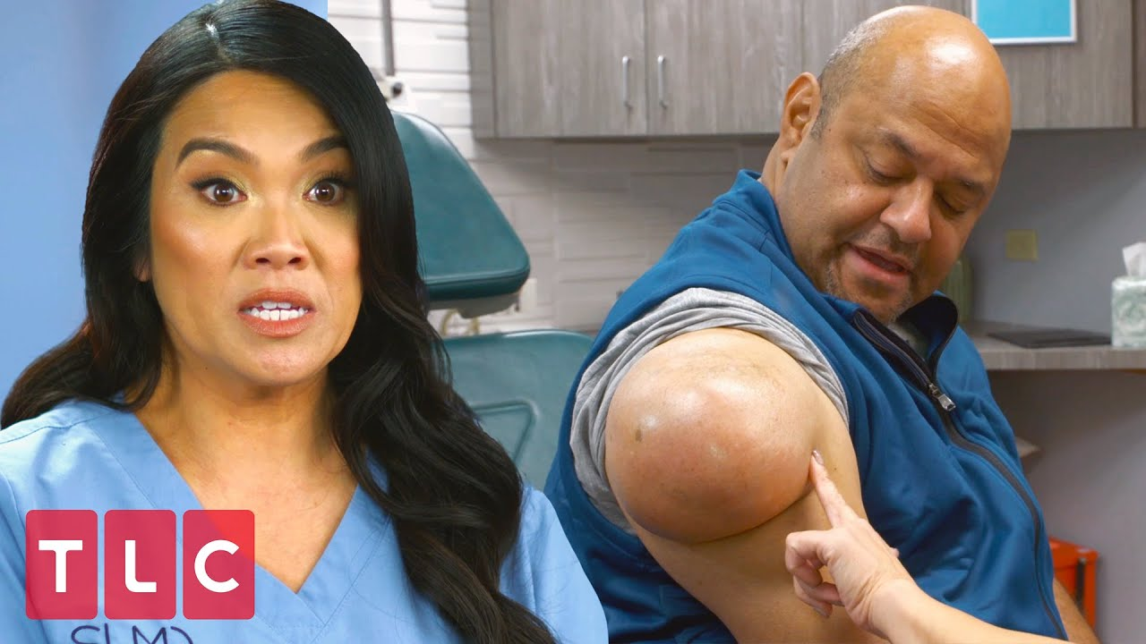 Download A Weight Off His Shoulder | Dr. Pimple Popper (Extended)