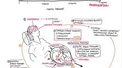 ectopic steroid hormone production