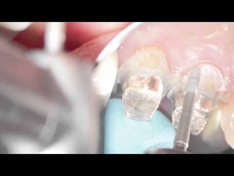 Металлокерамическая коронка на зуб цена 7000 руб