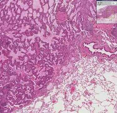 Histopathology Lung--Bronchiolo-alveolar carcinoma
