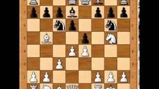 Ruy Lopez Opening Trap # 2. Zukertort Vs Anderssen.