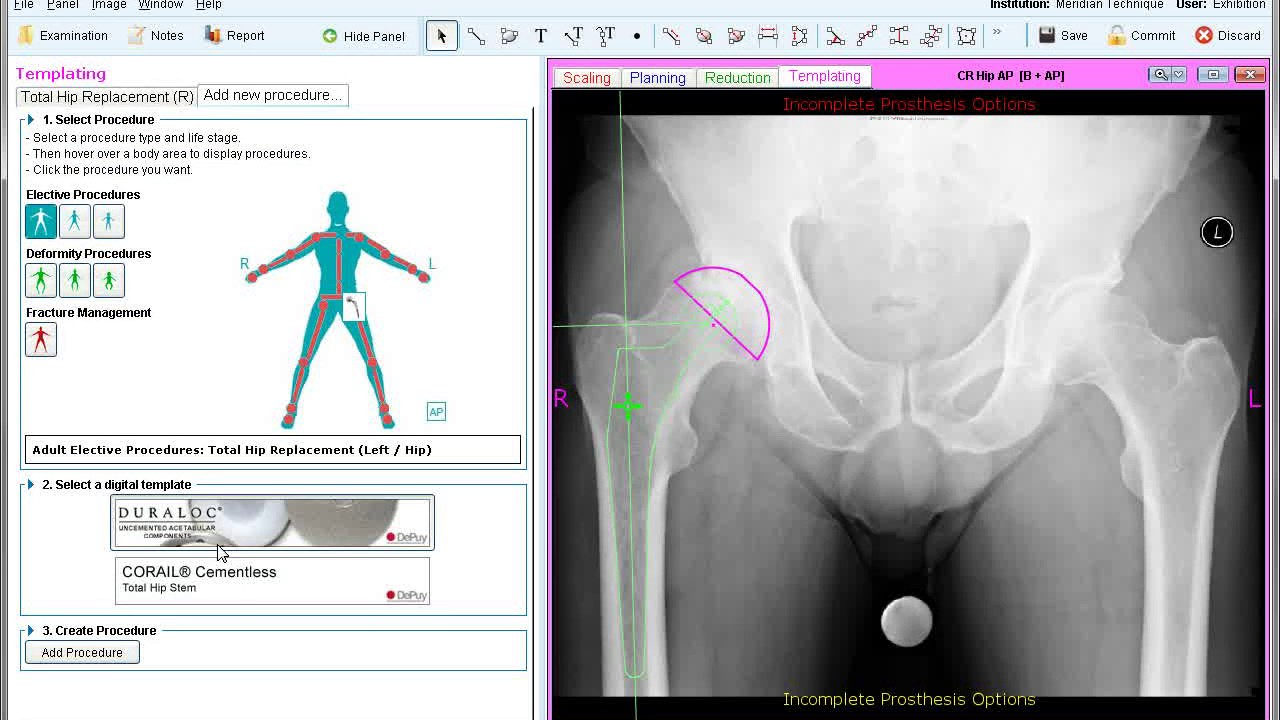 Dorable hip templating model model resume template for Orthopedic templating software
